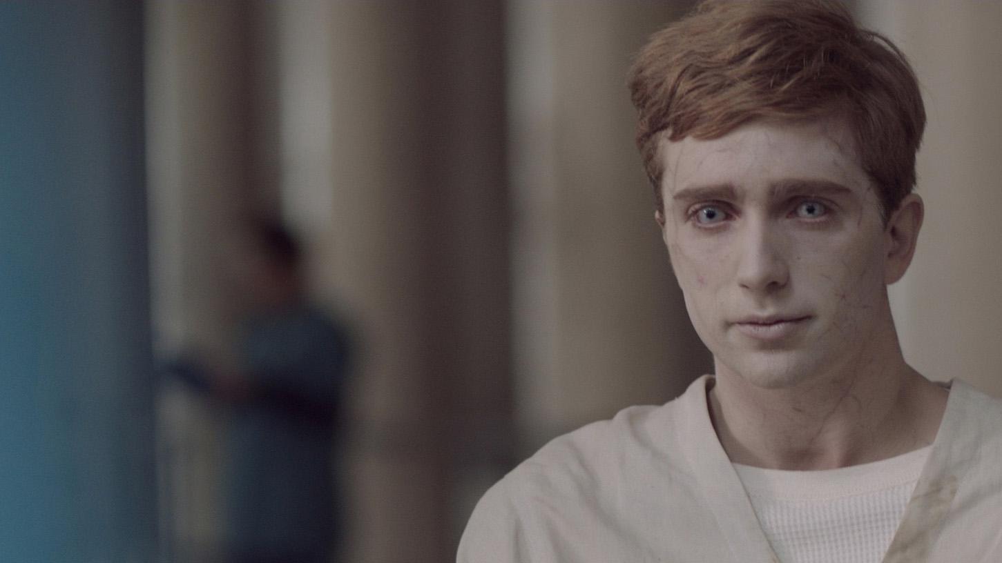 Jugendlicher mit fahler Haut, Zombieaugen und hellem Krankenhauskittel